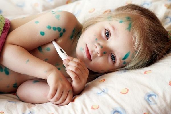 Может ли быть понос при ветрянке у детей — Детки-конфетки